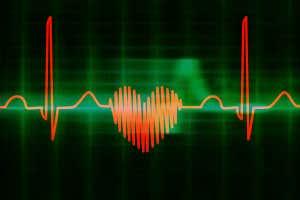 electrocardiograma en forma de corazon